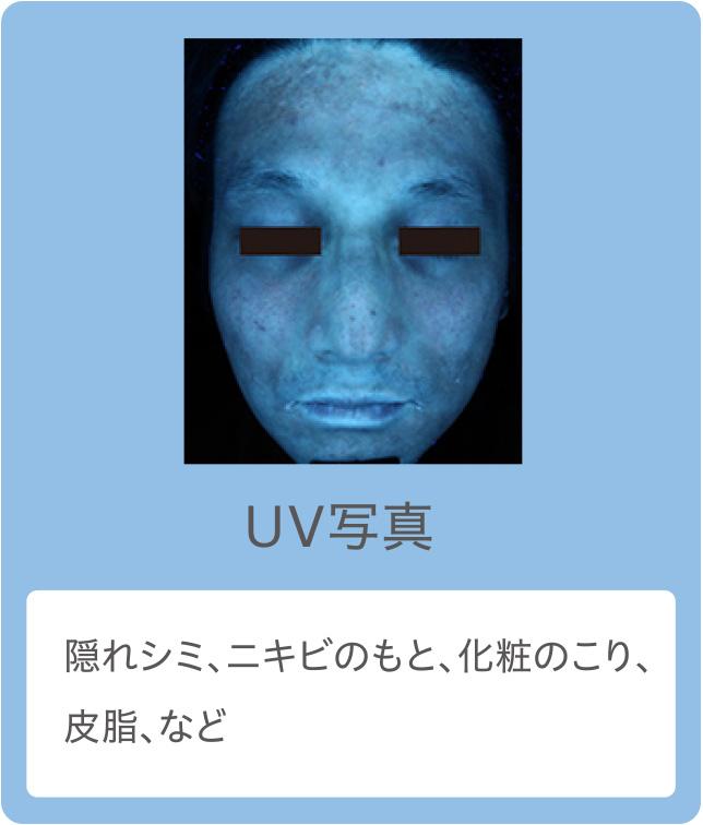 UV写真:隠れシミ、ニキビのもと、化粧のこり、皮脂、など
