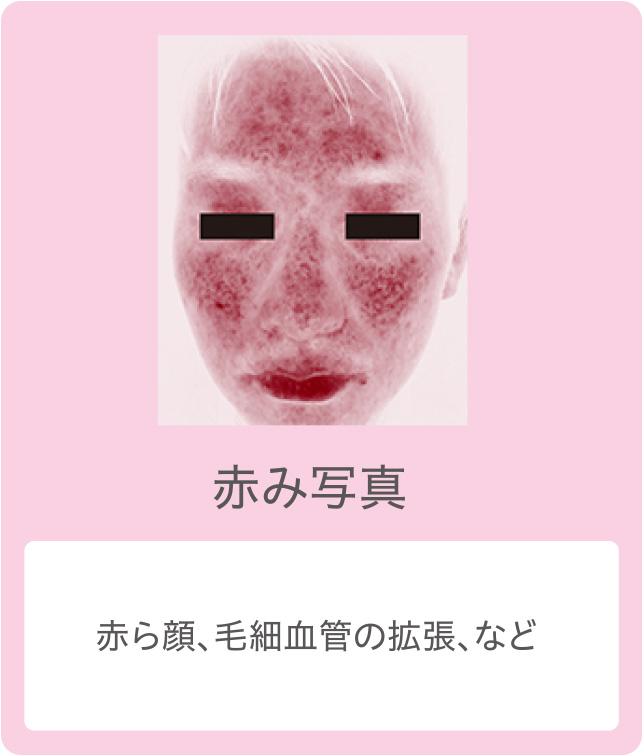 赤み写真:赤ら顔、毛細血管の拡張、など