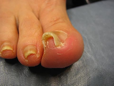 と 間 爪 皮膚 痛い の が