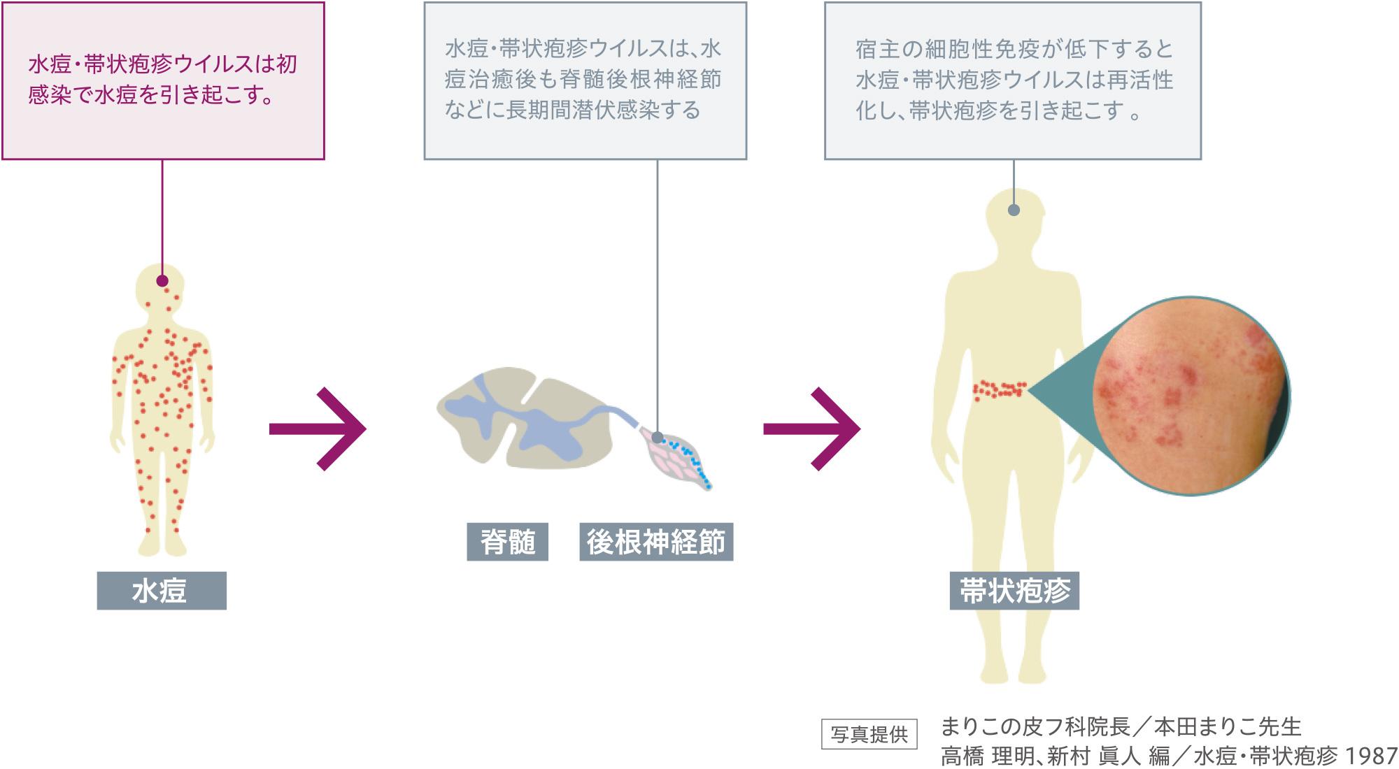 水痘・帯状疱疹ウイルスは初感染で水痘を引き起こす。水痘・帯状疱疹ウイルスは、水痘治癒後も脊髄後根神経節などに長期間潜伏感染する。宿主の細胞性免疫が低下すると水痘・帯状疱疹ウイルスは再活性化し、帯状疱疹を引き起こす 。写真提供:まりこの皮フ科院長/本田まりこ先生、高橋 理明、新村 眞人 編/水痘・帯状疱疹 1987