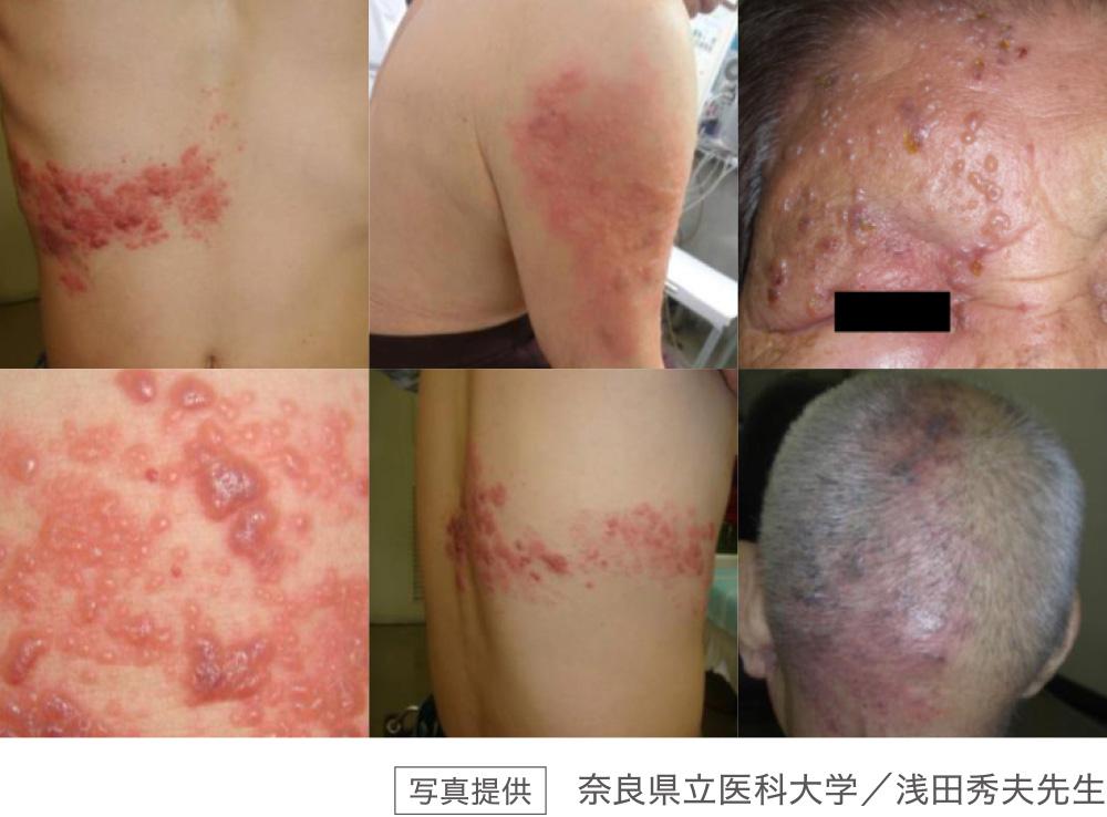 写真提供:奈良県立医科大学/浅田秀夫先生
